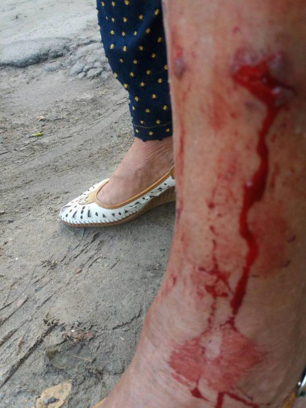 В Запорожской области бездомный пес напал на женщину (Фото)