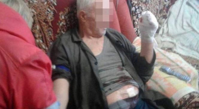 Взрыв в Запорожье: пенсионеру оторвало пальцы
