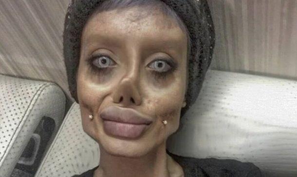 Иранская девушка изуродовала себя в попытках стать похожей на Джоли