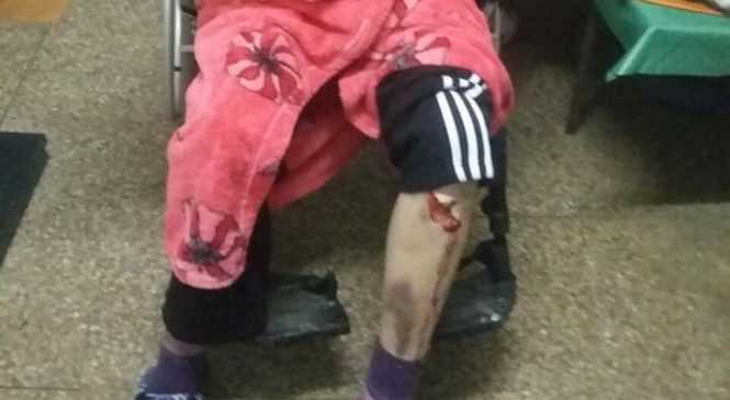 Спасибо медикам за помощь: перелом и рваные раны на ноге, — подробности