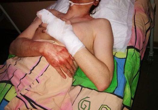 Зверски избит заместитель главы партии «Сила людей», — ФОТО