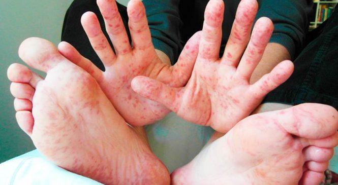 Опасная болезнь не отступает от Запорожья: количество заболевших корью продолжает расти