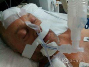 Россиянин, избивший украинца в Турции отпустили после уплаты штрафа, а житель Запорожья находится в больнице без обещанной финансовой поддержки